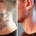 Come rimuovere con successo un tatuaggio