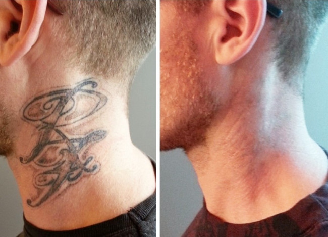 rimozione tatuaggi roma